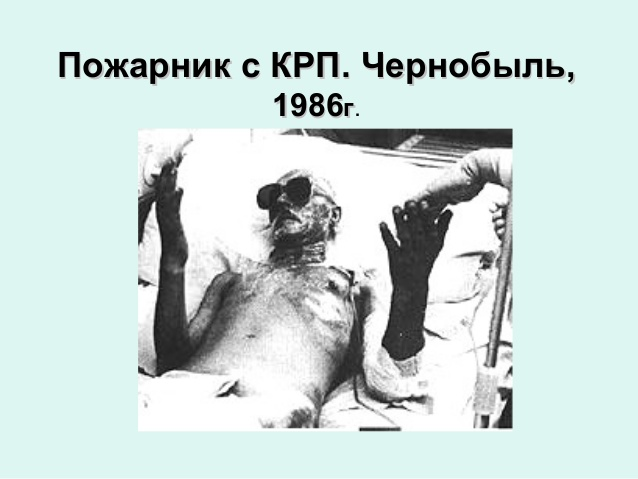 chernobyl radiation burns