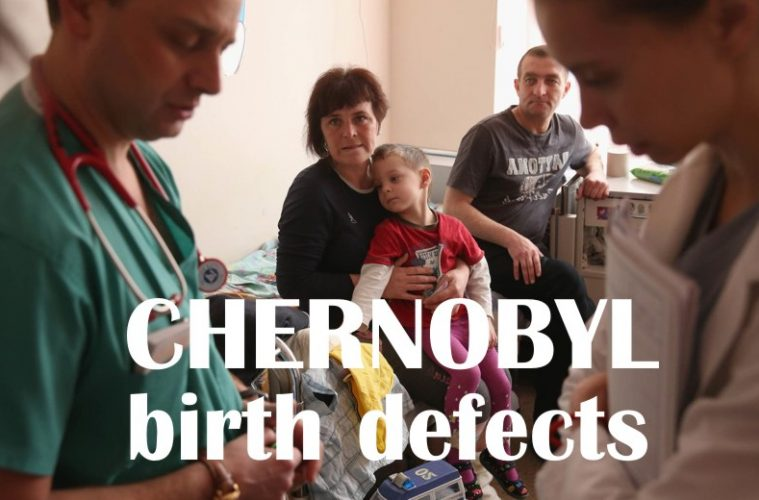 chernobyl birth defects pictures